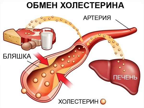 Холестерин в крови повышен: основные причины, как лечить
