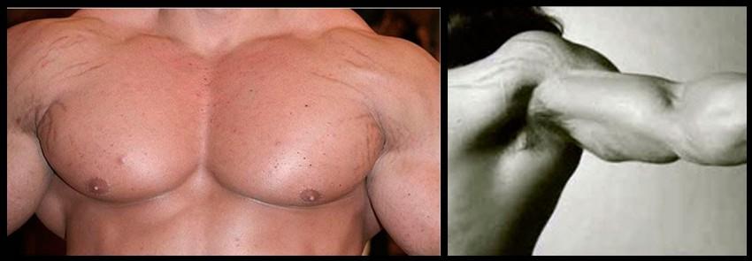 Разрыв кожи при ее растяжении
