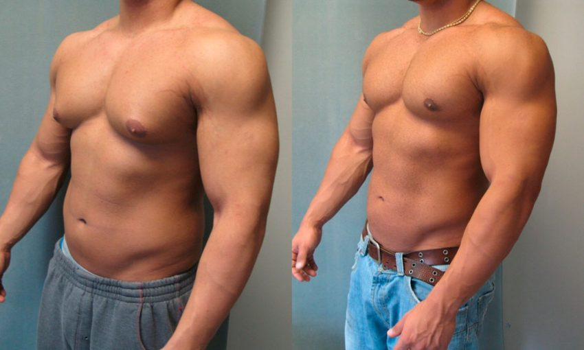 Лечение гинекомастии у мужчин, виды операций