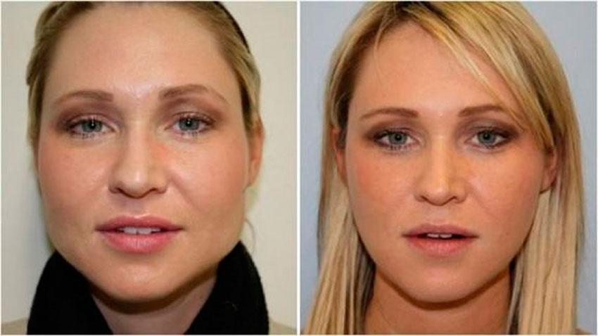 Как похудеть в лице, чтобы появились скулы. Упражнения и диета.