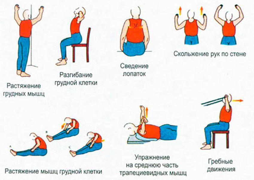 Защемление нерва в грудном отделе симптомы и лечение в домашних условиях