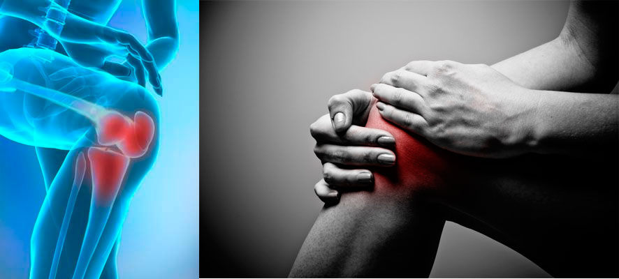 Народное лечение артрита суставов кистей рук