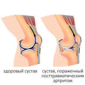Посттравматический артрит
