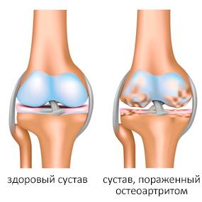 резкая боль справа внизу живота при беге