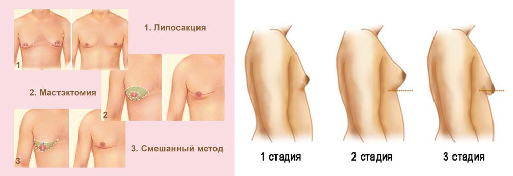 Как растет грудь у транссексуалов