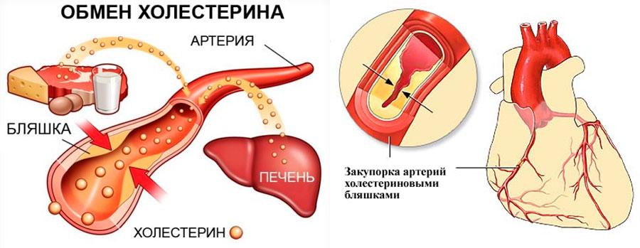 расторопша от холестерина