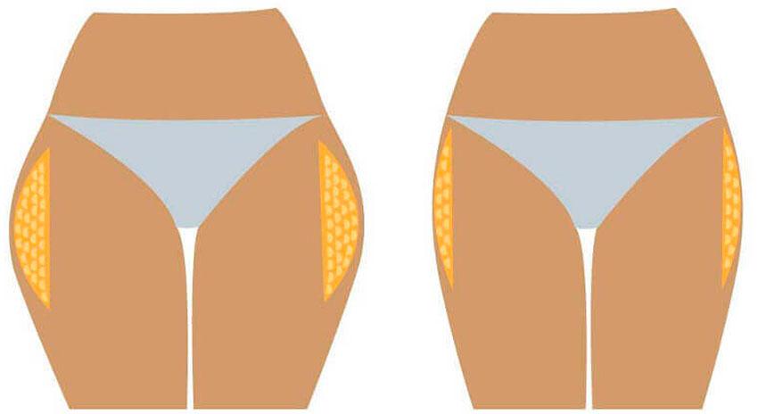 обертывания против жира на животе и боках