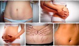 Как убрать растяжки на животе после родов